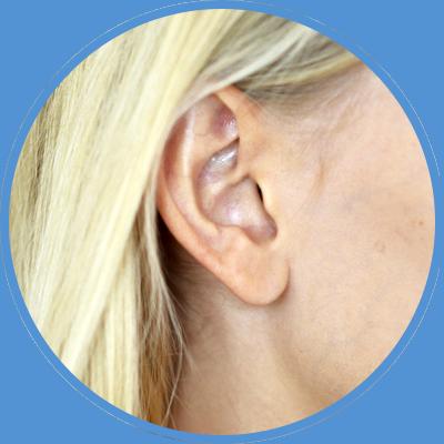 Cirugía de orejas en Las Palmas