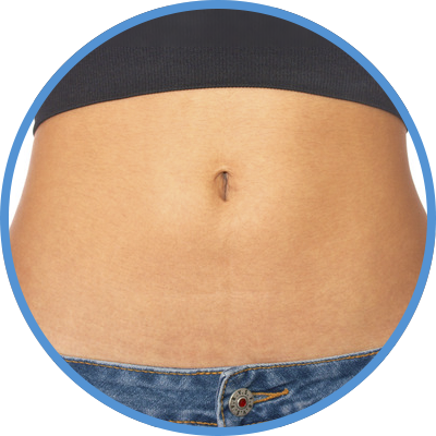 Reducción de abdomen en Las Palmas